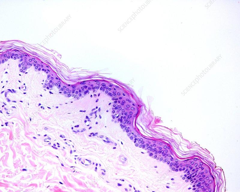 Skin, light micrograph