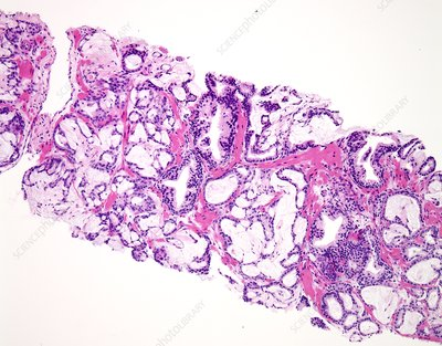 Prostate cancer, light micrograph