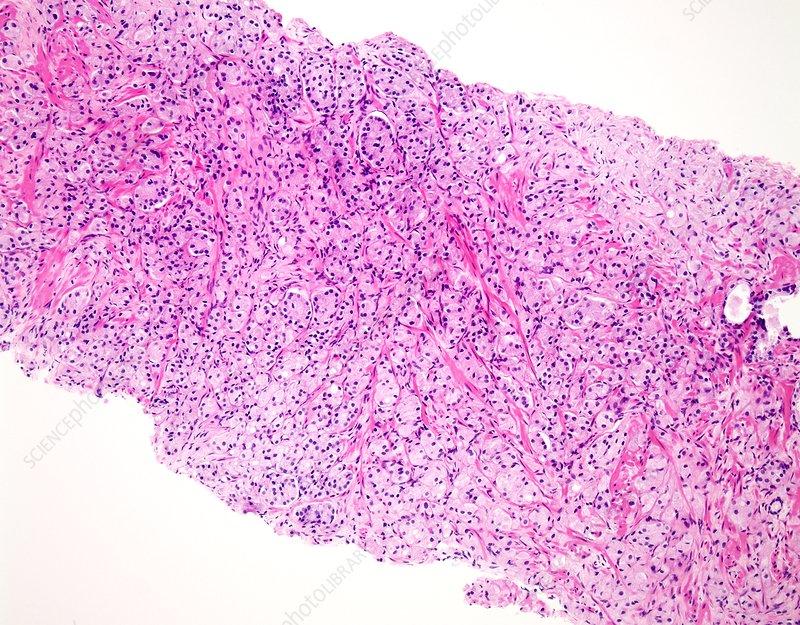 Prostate cancer, light micrograph