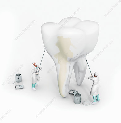 Dentists whitening large tooth, illustration