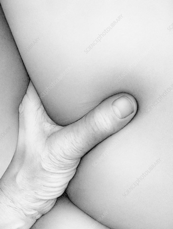 Close up of hand squeezing flesh, illustration