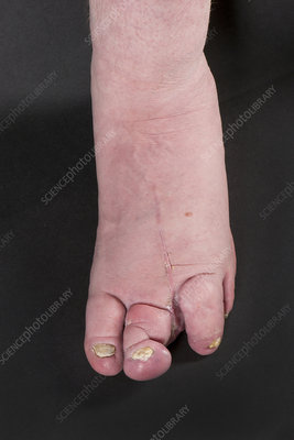 Macrodactyly of the feet