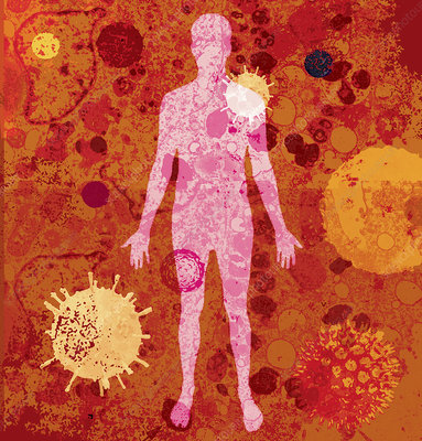 The human body with lots of different viruses, illustration