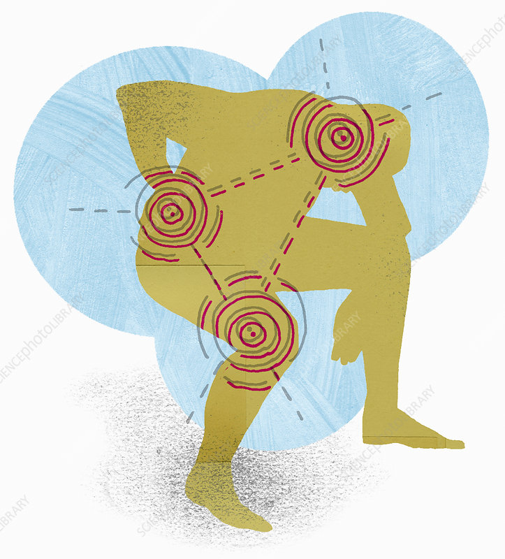Targets over man with joint pain, illustration