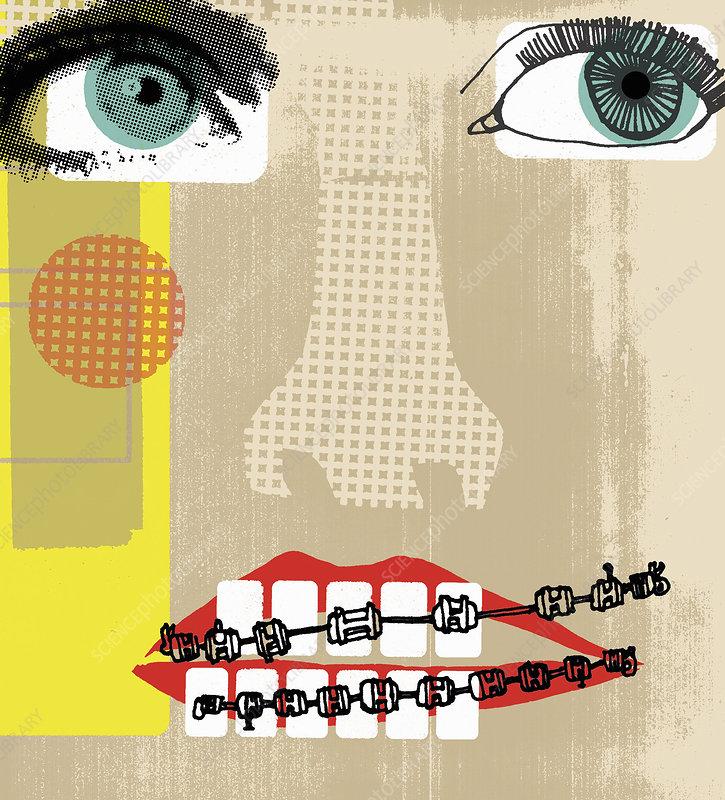 Teeth with braces, illustration