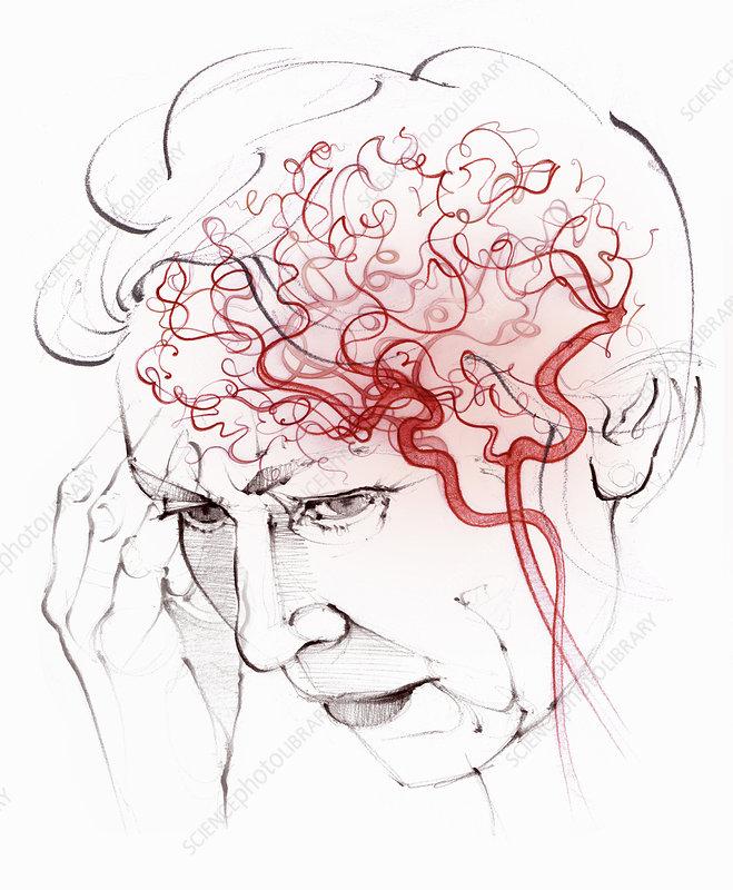 Brain blood supply in vascular dementia, illustration