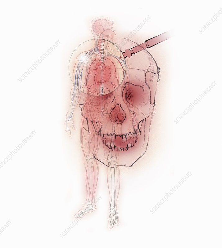 Magnifying glass over skull and male body, illustration