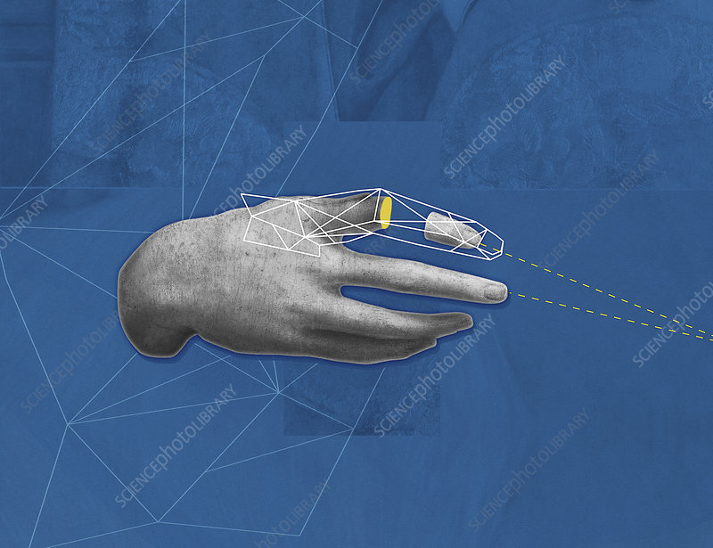 Human hand with missing piece of finger, illustration