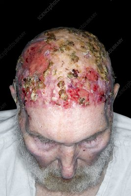 Basal cell carcinomas of the scalp