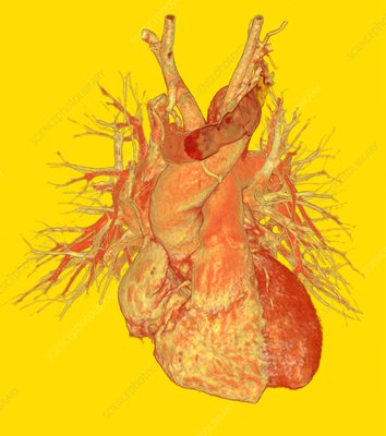 Human heart, 3D CT angiogram