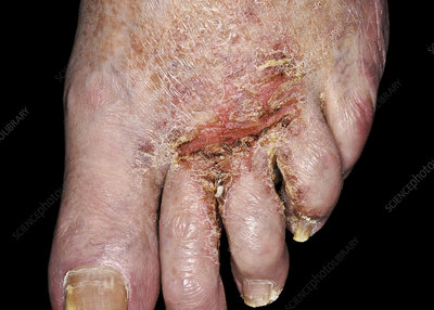 Ringworm and secondary bacterial infection of the foot