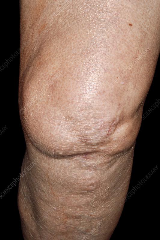 Swollen Knee In Osteoarthritis Stock Image C040 0994 Science Photo Library
