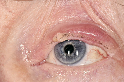 Chalazion abscess on an eyelid