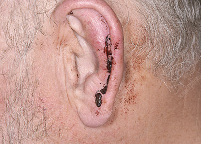 Injury to the ear after an assault
