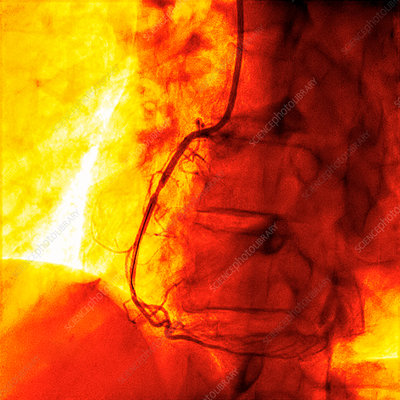 Coronary angiogram stenosed artery