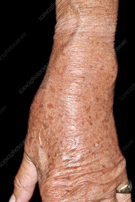 Gout affecting the wrist