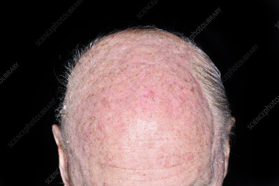 Hair loss due to chemotherapy