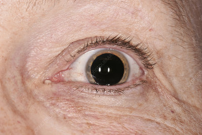 Dilated pupil for an eye examination