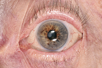 Conjunctival scar from eye injury