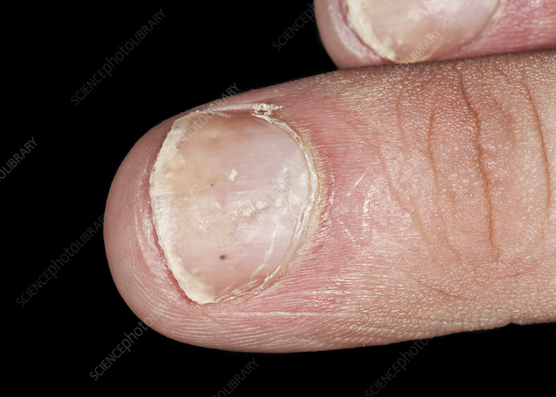 Psoriasis of the fingernails - Stock Image - C040/2157 - Science ...