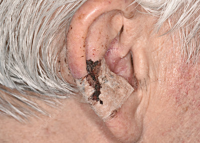 Scar after basal cell carcinoma excision