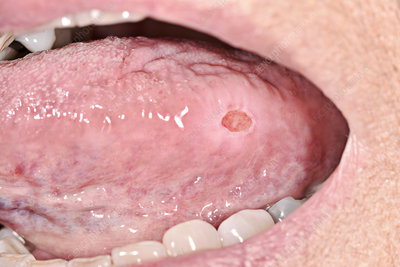 Aphthous ulcer of the tongue