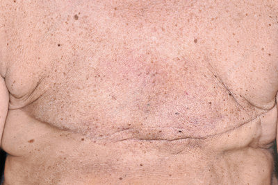 Bilateral breast cancer removal scars