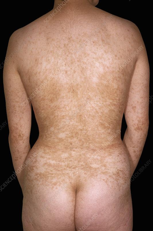 Lichen aureus pigmentosus