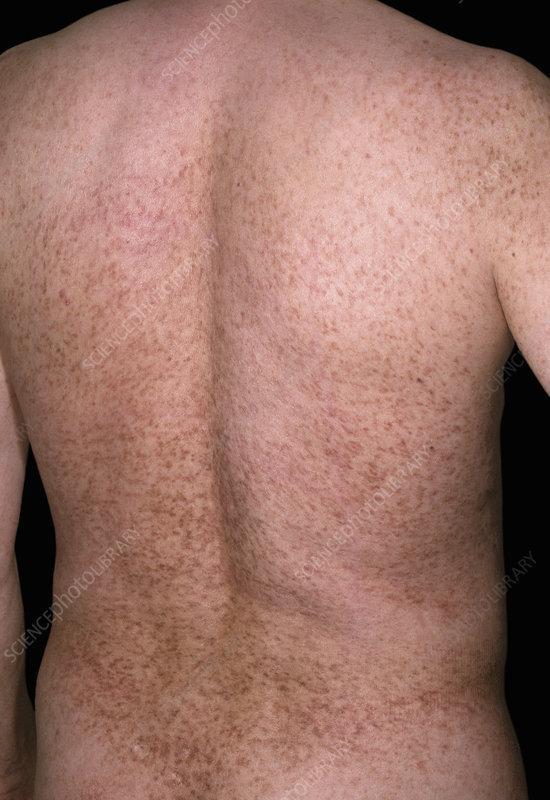 Rash in mastocytosis