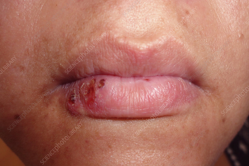 Cold sore - Stock Image - C040/2315 - Science Photo Library