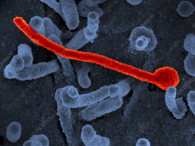Ebola virus particle, SEM