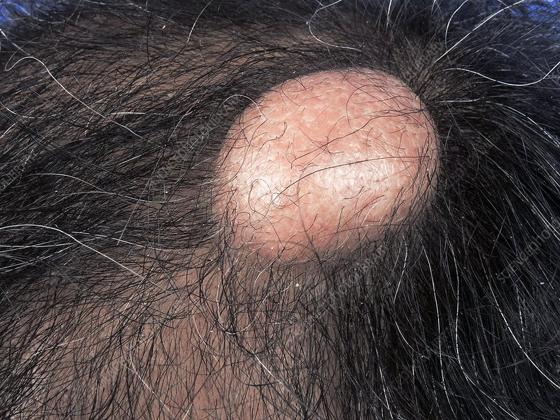 Pilar cyst - Stock Image - C040/2857 - Science Photo Library