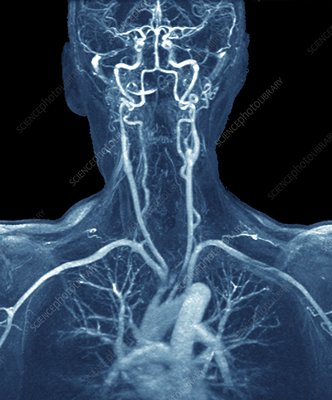 Chest, neck and head arteries, MRI angiogram
