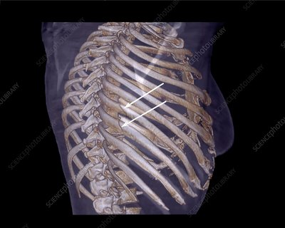 Rib fractures, 3D CT scan
