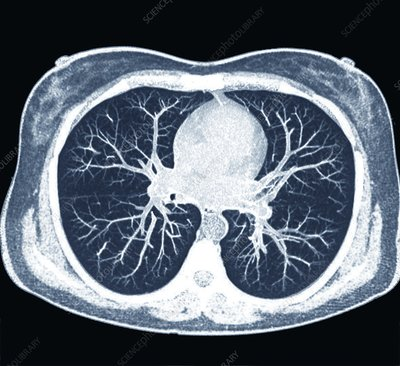 Heart and lungs, CT scan