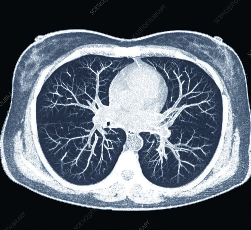 pic of lungs and heart