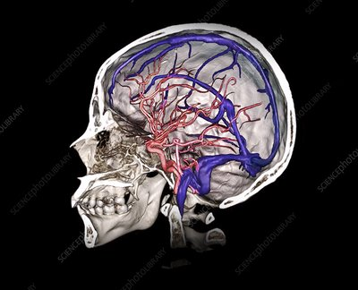Brain arteries and venous sinuses, 3D CT angiogram