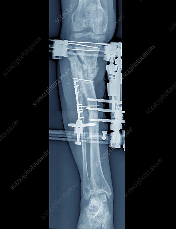 Pinned Fractured Lower Leg Bones X Ray Stock Image C0403303