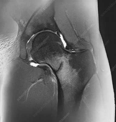 Hip stress fracture, MRI scan