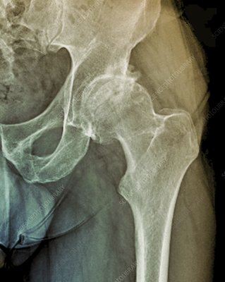 Osteonecrosis of the hip, X-ray