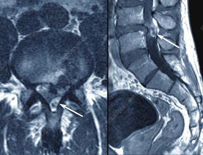 Slipped disc in the lumbar spine, MRI scans