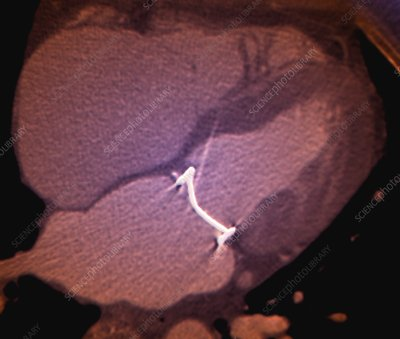 Mitral valve replacement, CT scan
