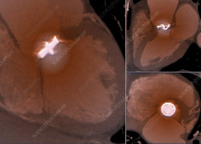 Aortic valve replacement, CT scans