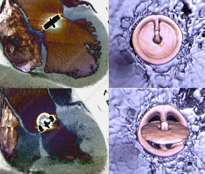Aortic valve replacement, 2D and 3D CT scans