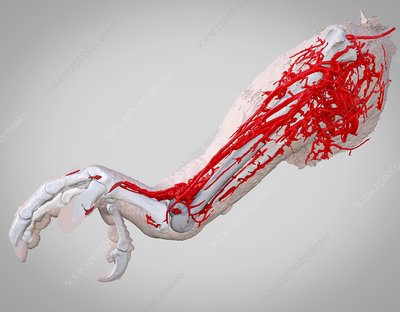 Parrot leg and blood vessels, 3D CT scan