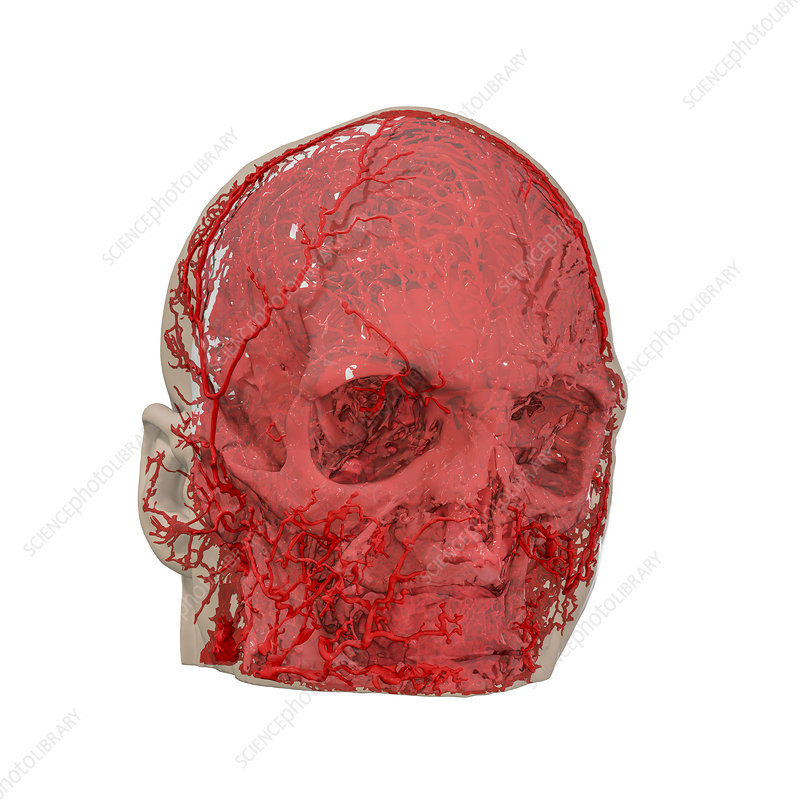 Human Head And Blood Vessels 3d Ct Scan Stock Image C0404088