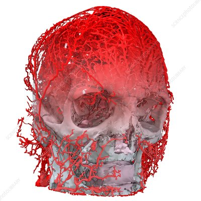 Human head and blood vessels, 3D CT scan