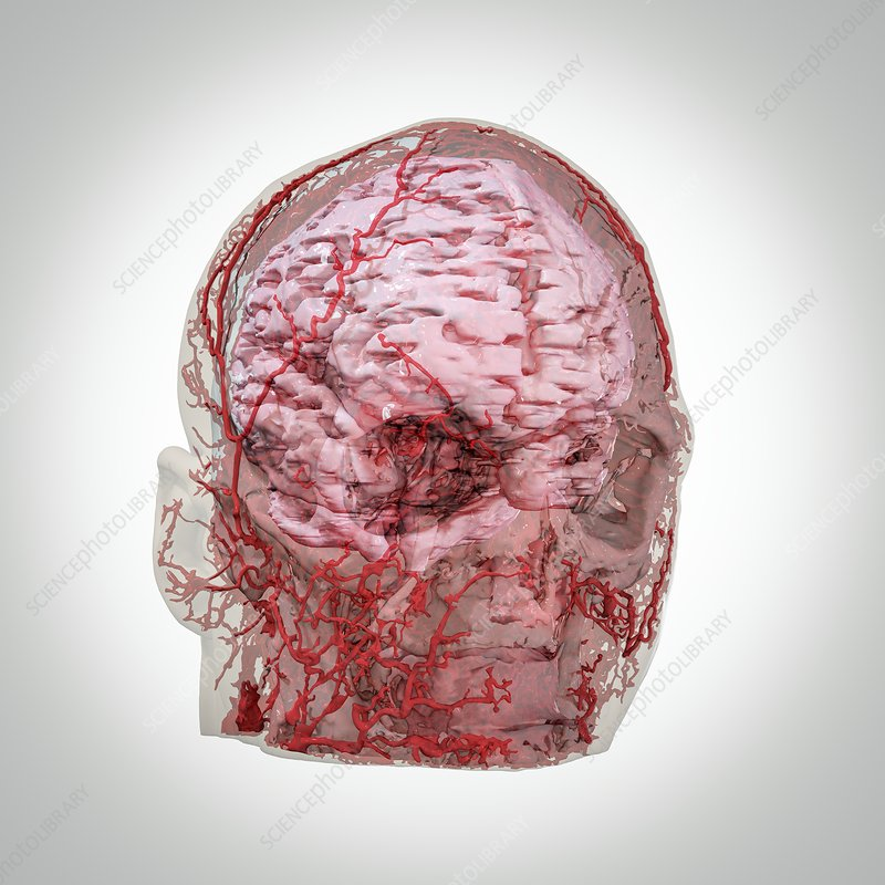 Human Head And Brain Blood Vessels 3d Ct Scan Stock Image C040