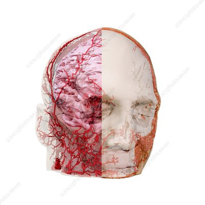 Human head and brain blood vessels, 3D CT scan