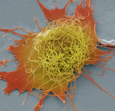 Liver cancer cell, SEM